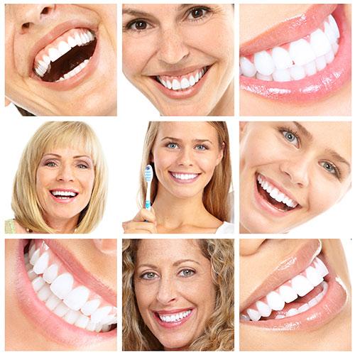 tandblekning-bilder